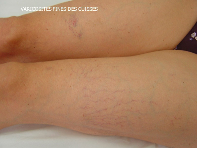 La dysplasie du tissu conjonctif la varicosité